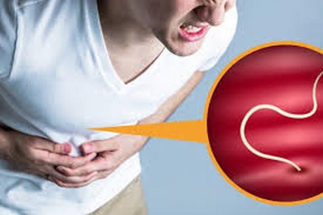 Bệnh giun đũa: nguyên nhân, triệu chứng và điều trị