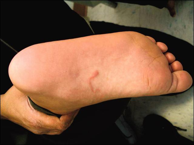 Bệnh giun móc: tác nhân gây bệnh giun móc là gì